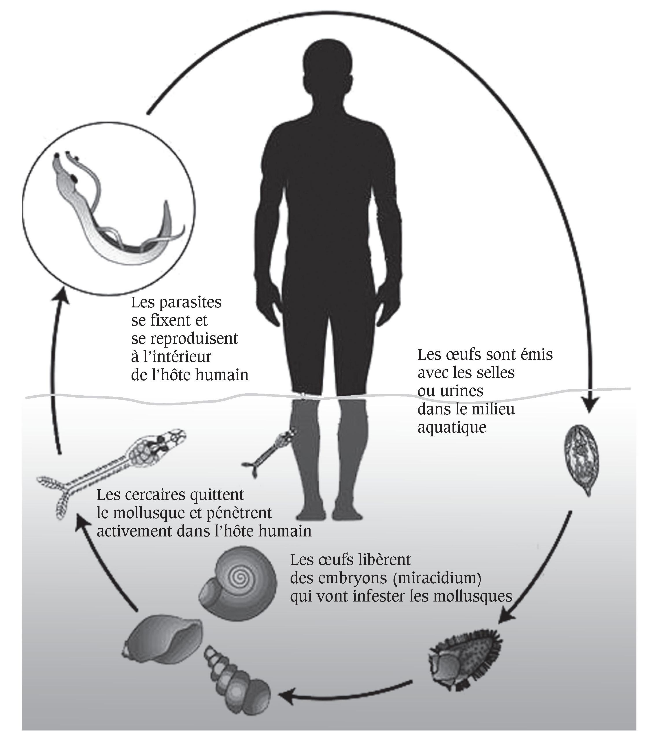"""Résultat de recherche d'images pour """"schistosomiase humaine"""""""